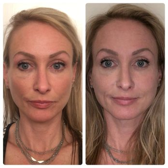 before and after patient testimonial