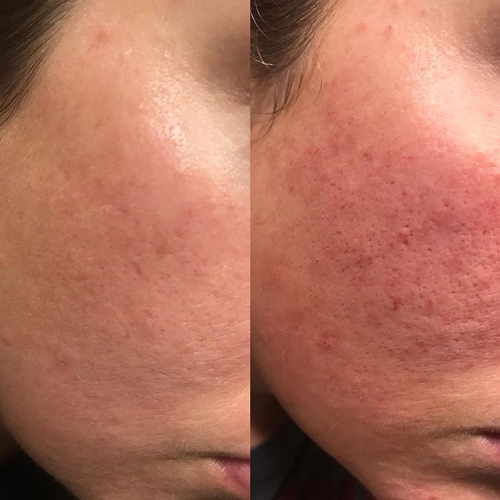 basic vi peel and dermasweep treatment at perceptions aesthetic spa in fairoaks and roseville, ca