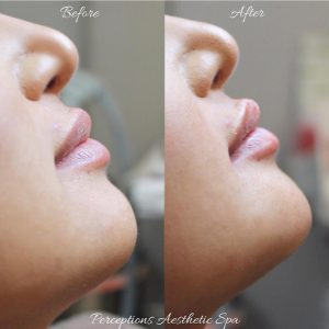 before and after chin filler treatment at perceptions aesthetic spa in fairoaks and roseville, ca