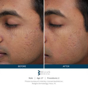 skinpen before and after treatment in fairoaks and roseville, ca