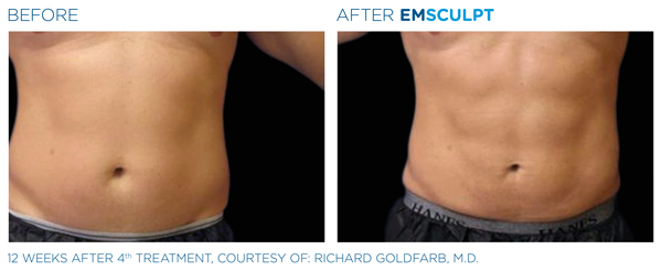 emsculpt treatment before and after in fair oaks and roseville, ca