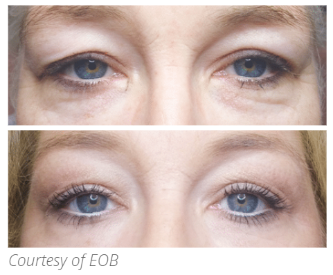 plasma pen treatment for the eyes at perceptions aesthetic spa in fairoaks and roseville, ca