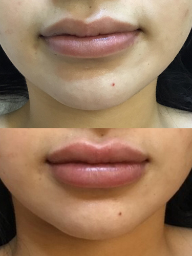 lip filler before and after at perceptions aesthetic spa in fairoaks and roseville, ca